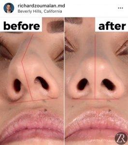 improving your plastic surgery instagram content
