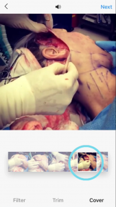 improve your plastic surgery instagram content